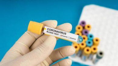 Photo of Еще три случая заболевания COVID-19