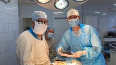 Photo of Кокшетауские хирурги провели операцию по удалению 112 железных предметов из желудка пациента