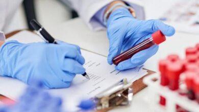 Photo of Об эпидемиологической ситуации в регионе рассказала главный санитарный врач области