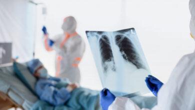 Photo of Ученые нашли способ спасать больных COVID-19 без аппаратов ИВЛ