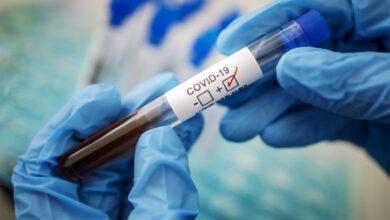 Photo of Статистика COVID-19: 67 человек заболели за сутки