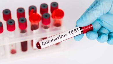 Photo of Статистика COVID-19: заболели 108 человек, выздоровели – 276