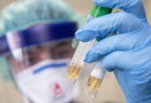 Photo of В ВОЗ уточнили период заразности заболевших COVID-19